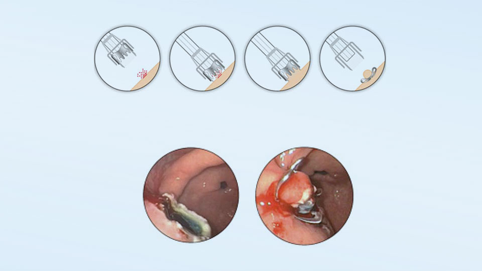 Ovesco OTSC system Operating principle. A nitinol clip is applied endoscopically, holds the tissue together and stops the bleeding.